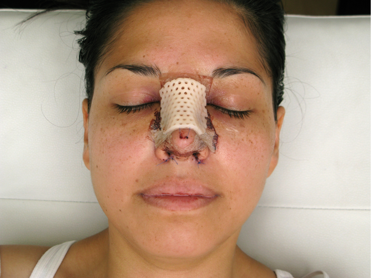 woman with bandage wondering if her plastic surgery fails