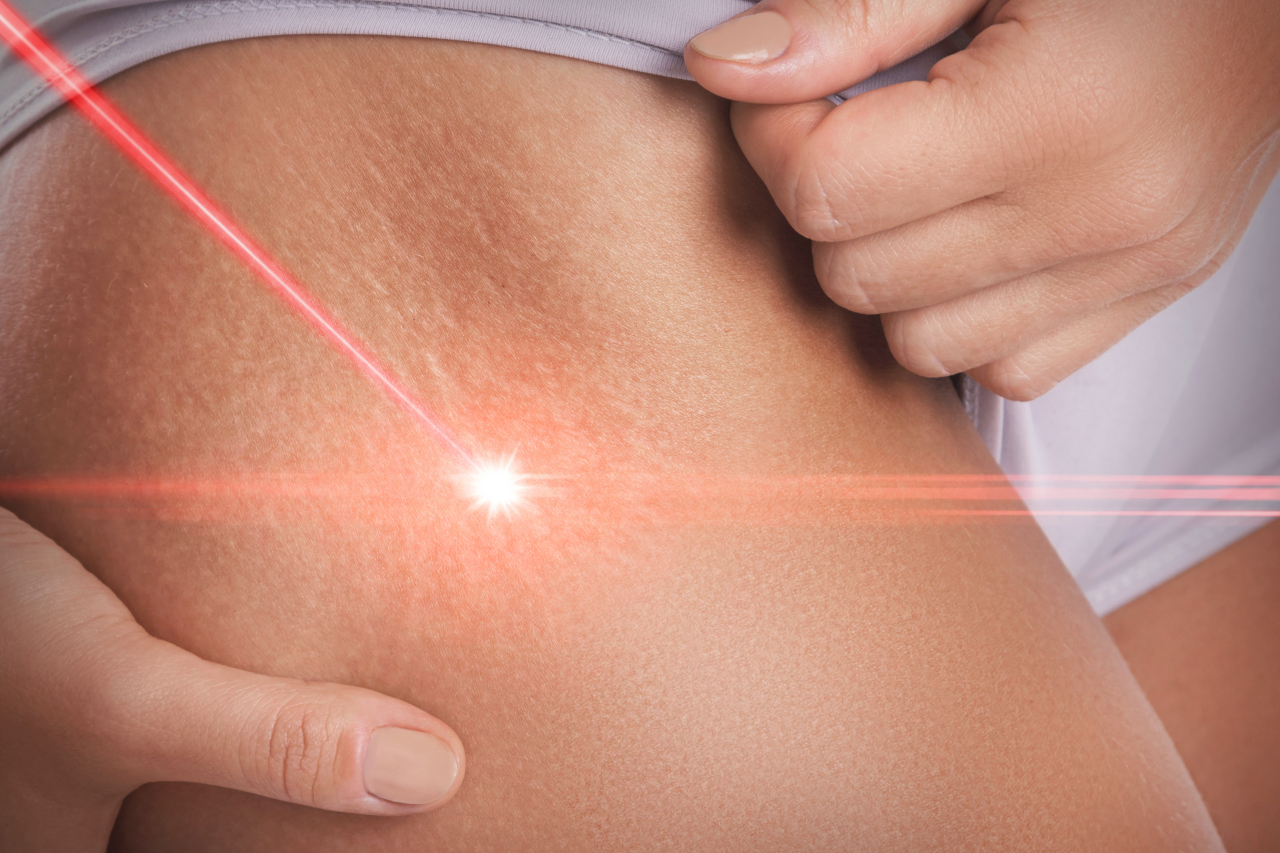 The Options Available For Surgery For Stretch Marks