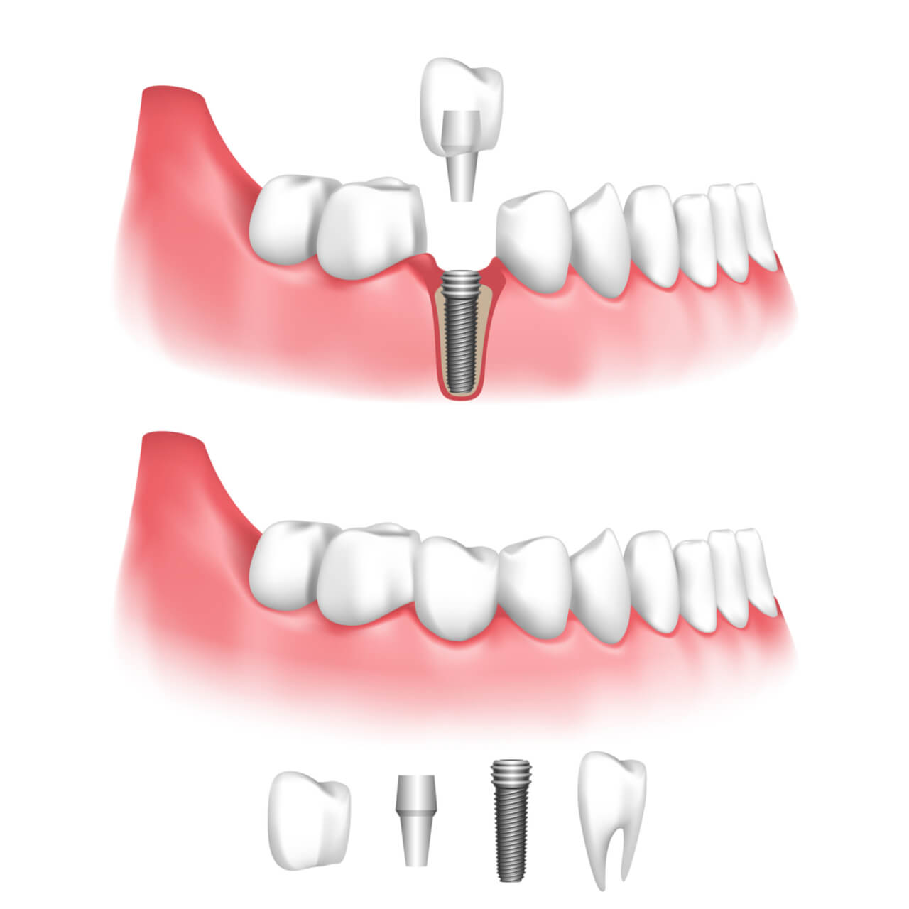 dental implant vs crown