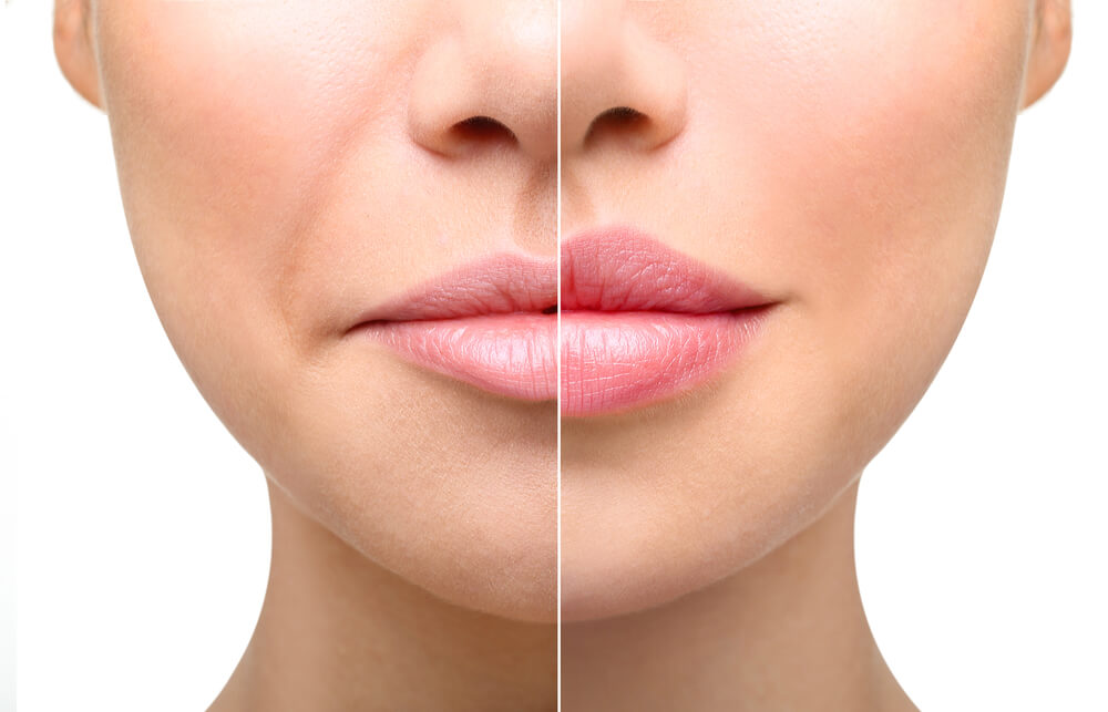 lip augmentation fat transfer