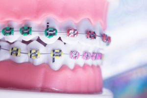 Dental Malocclusion 4 Issues Of Misaligned Teeth